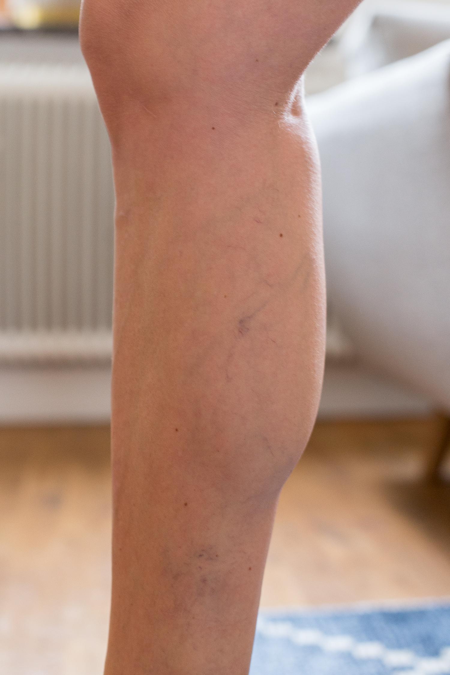 tydliga blodådror på benen